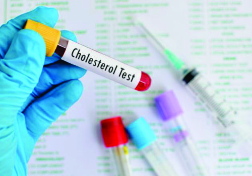 When last did you check your Cholesterol?